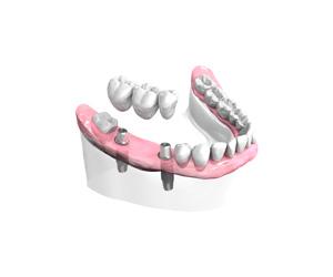 Remplacer plusieurs dents absentes ou abîmées à Maisons-Alfort