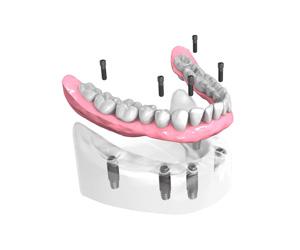 Remplacer toutes les dents absentes ou abîmées à Maisons-Alfort