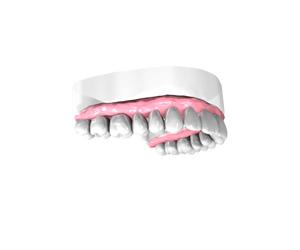 Remplacer une dent absente à Maisons-Alfort